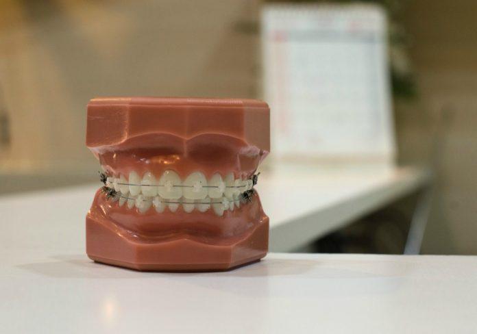 teeth clenching