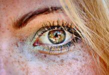 reversing sun damage on skin
